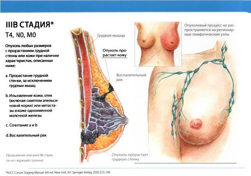 Рак Молочной Железы фото