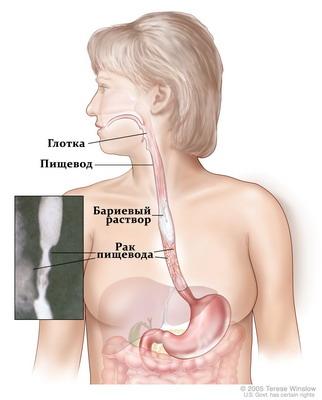 Одновременно раком и рот