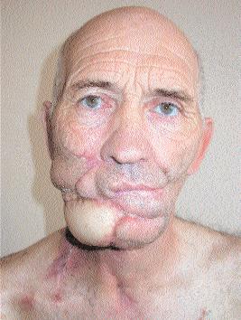 Как выглядит человек на последней стадии рака